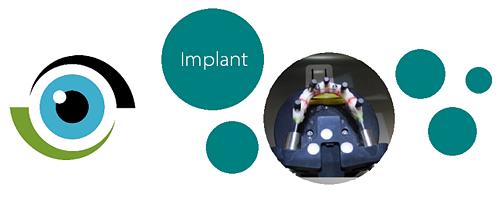 インプラント-1